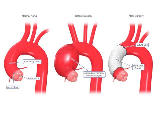 aortic-image
