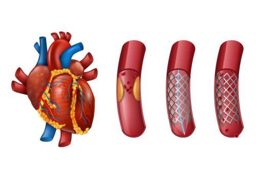 cardiac surgery in Mumbai