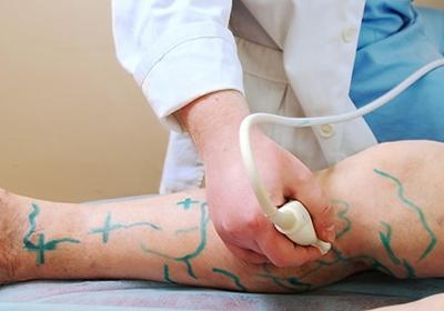 vascular surgeon in Mumbai