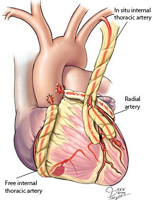 coronary artery bypass surgery in Mumbai